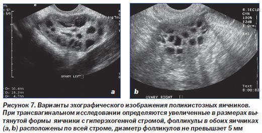 Форум беременность при поликистозе яичников