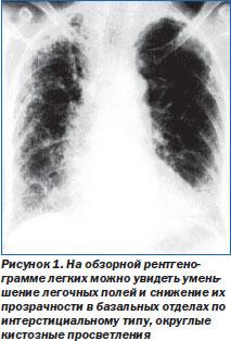 ОГК Пневмония Интерстициальные пневмонии Интерстициальные  Смертность от ИФА больше в старшей возрастной группе и составляет в среднем 3 0 на 100 тыс населения медиана выживаемости колеблется от 2 3 года до 5 лет