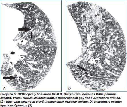 ОГК Пневмония Интерстициальные пневмонии Интерстициальные  Лимфоидная интерстициальная пневмония lip встречается редко обычно у женщин чаще старше 40 лет Характерно медленное развитие заболевания